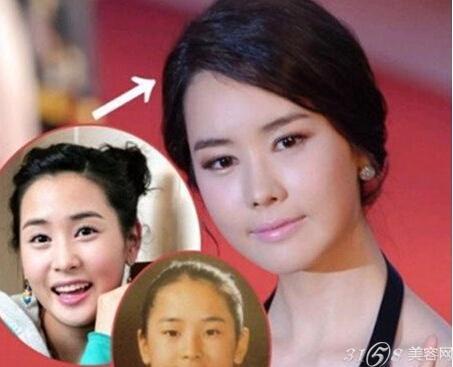 韩国明星双眼皮素颜图片