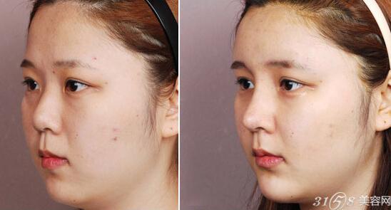 隆鼻手术前后对比图: 专家对隆鼻手术失败图片介绍到,隆鼻手术失败手术后的采取的措施: 整形专家主张:隆鼻手术失败后,应争取尽早处理。因为如果属于硅橡胶鼻模的问题,一定要取出后再行修整,也可换一个鼻模,直至使术后鼻美曲线满意为止。对发生鼻头圆钝、鼻孔过度变形者,以及时拆除两鼻翼软骨内脚缝合固定针为好。鼻部皮肤发生变化者,均应及时取出鼻模,半年后再次手术。发生瘢痕、肉芽增生者,应刮除肉芽,切除瘢痕。有穿孔者,能拉拢缝合者,可行I期缝合。创口较大者,可考虑采用皮瓣法修复。 隆鼻手术失败多半是因为求美者在手术时