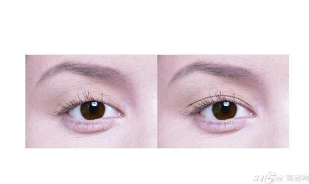 做埋线双眼皮手术恢复快吗