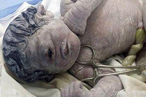 埃及婴儿一只眼睛 似神话中的巨人