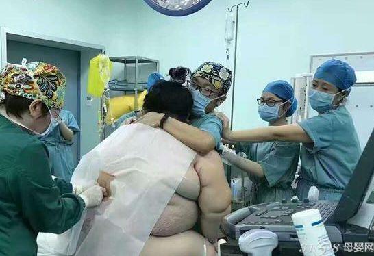 280斤孕妇生产