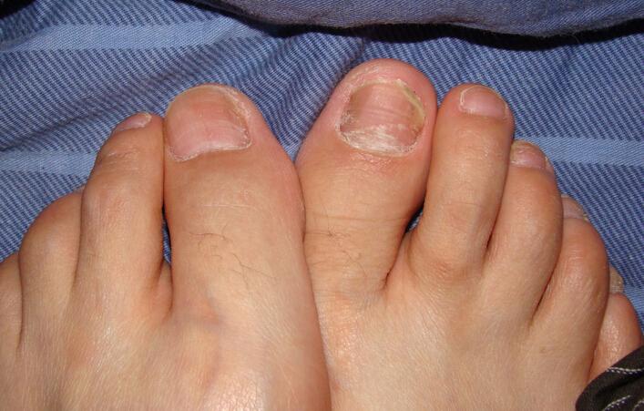 灰指甲的初期症状 指甲呈污灰色白色